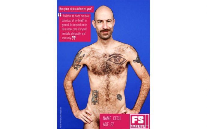 HIV-Stimga