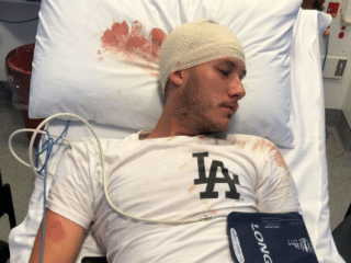 Gay man bashed with bikechain and his sister punched for defending him