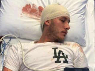 The Australian Gay Man And Sister Attacked By A Bicycle Chain Share More About The Terrible Night